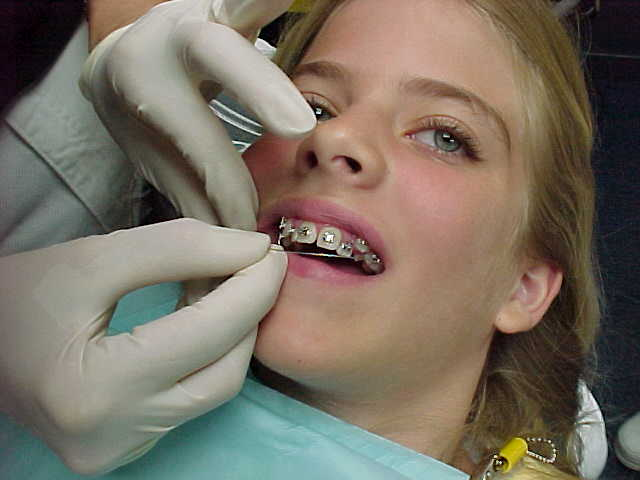 Kids get braces to make their teeth straight.