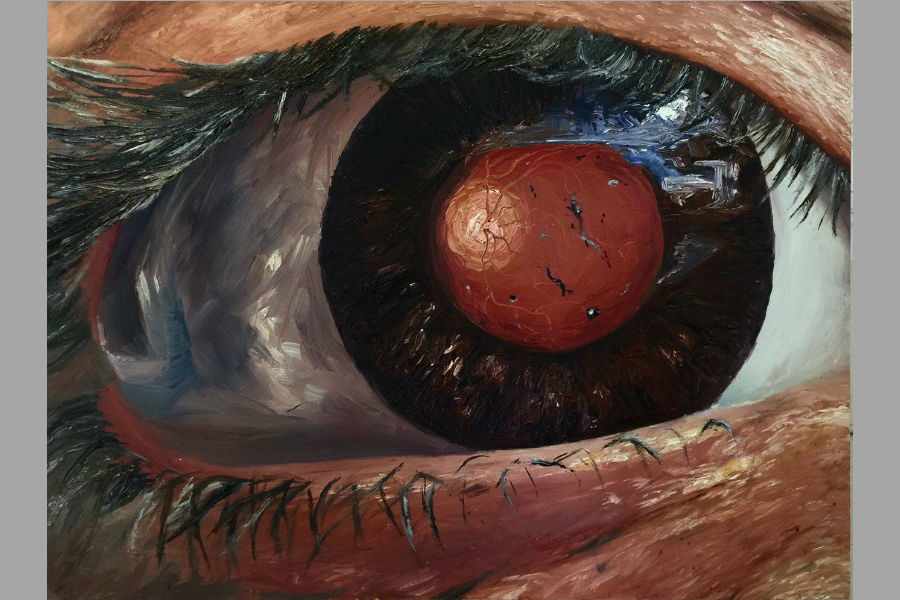 Hannah Werchan's 'High Risk for Retinal Detachment' painting